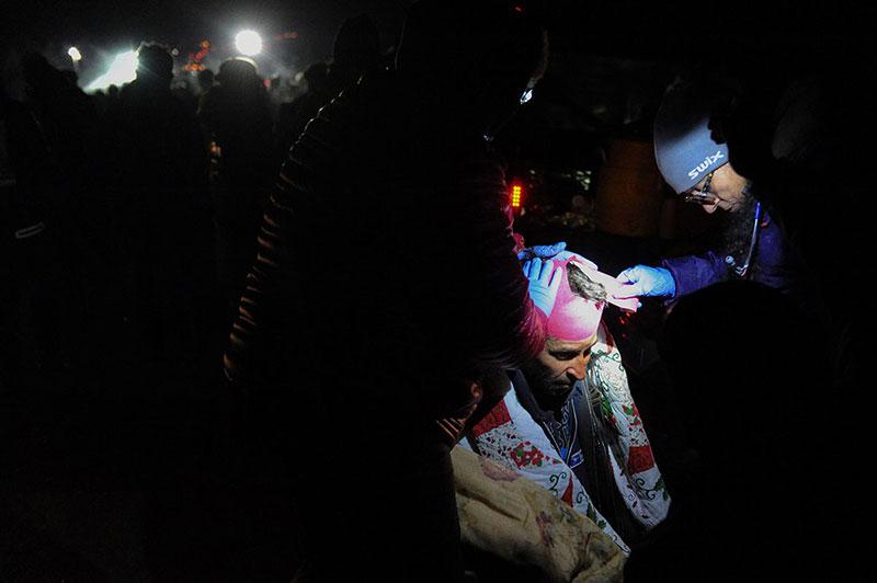 பாலத்தைக் கடக்க முற்பட்டதால் போலீசால் தாக்கப்பட்ட ஒருவருக்கு சிகிச்சை அளிக்கப்படுகிறது