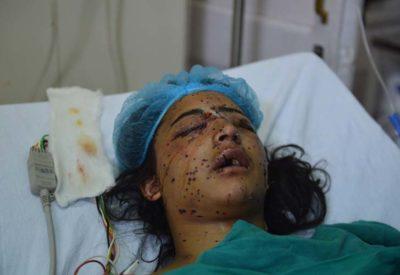 kashmirs-pellet-victims