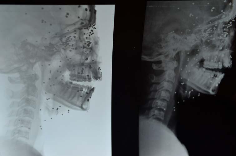 Kashmir pellet victims Insha Malik X-ray