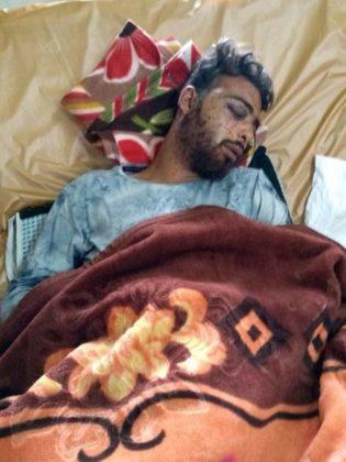Pellet-gun-victim-SMS-hospital