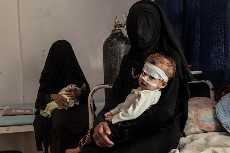 Malnutrition-cholera-Yemen-woes-1