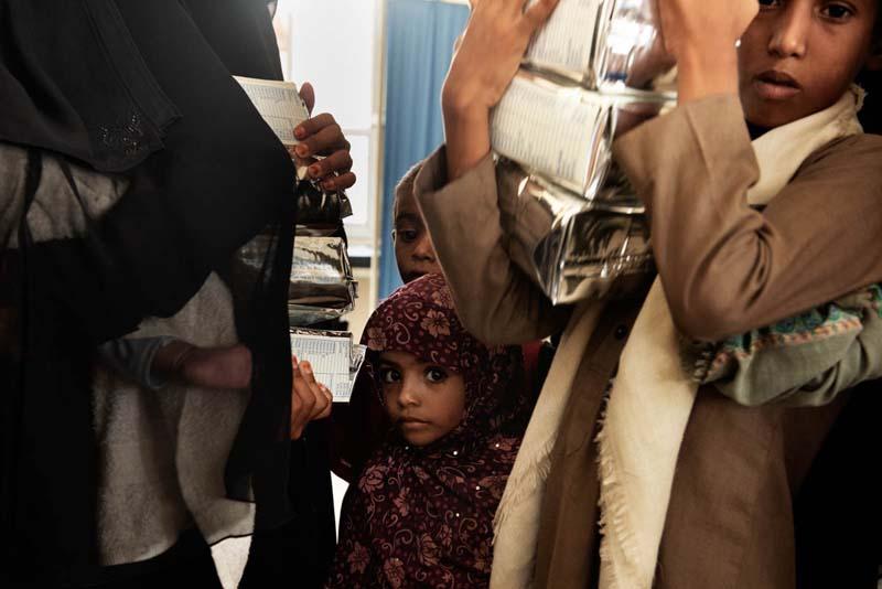 Malnutrition-cholera-Yemen-woes-3