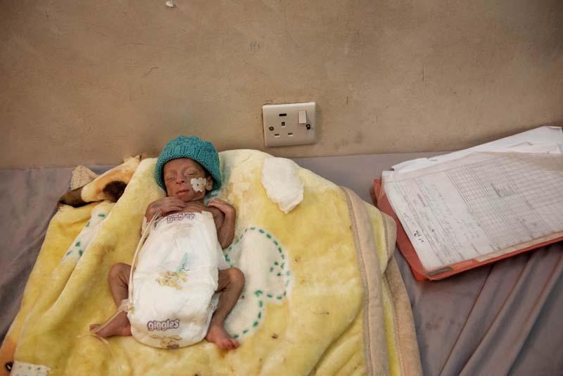 Malnutrition-cholera-Yemen-woes